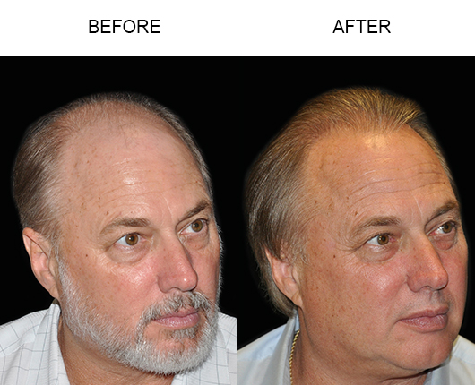 Hair Transplant Before & After Photo