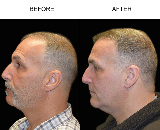 Photo Of Hair Transplant Results