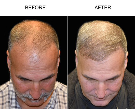 Before And After Photo Of Hair Transplant