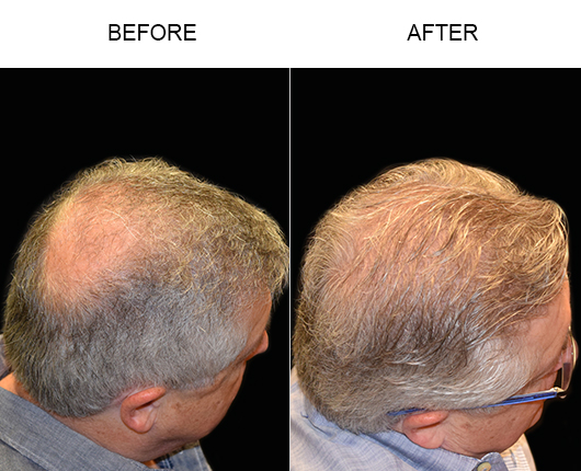 Before & After Photo Of Hair Transplant