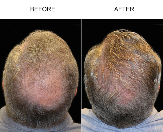 Hair Transplant Before And After Photo In Florida