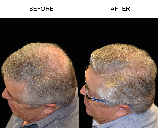 Hair Transplant Before & After Photo In Florida
