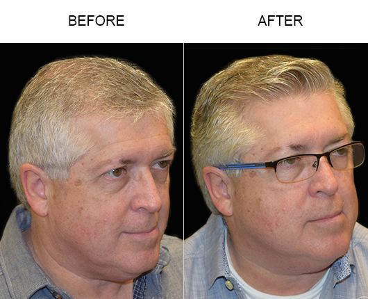 Photo Of Hair Transplant Results In Florida