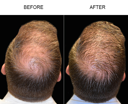 Before And After Photo Of Hair Transplant In Florida