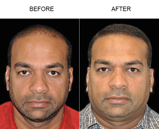 Before & After Photo Of Hair Transplant In Florida