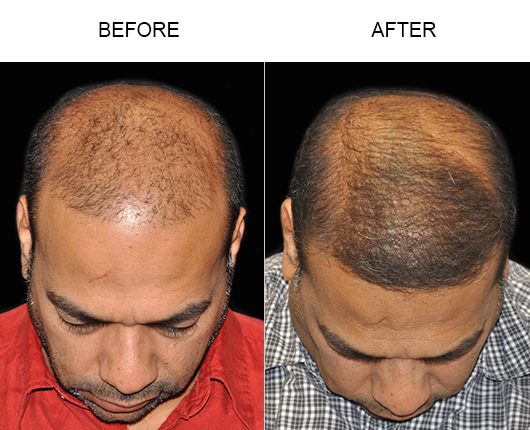 Hair Transplant Surgery Before And After Photo
