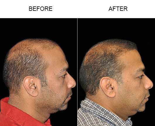 Hair Transplant Surgery Before & After Photo