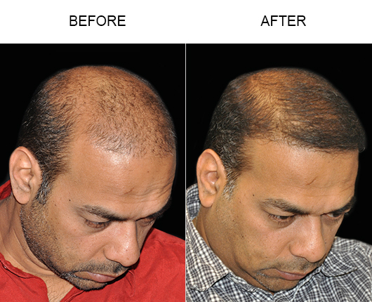 Photo Of Hair Transplant Surgery Results