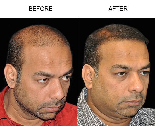 Before And After Photo Of Hair Transplant Surgery