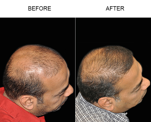 Before & After Photo Of Hair Transplant Surgery
