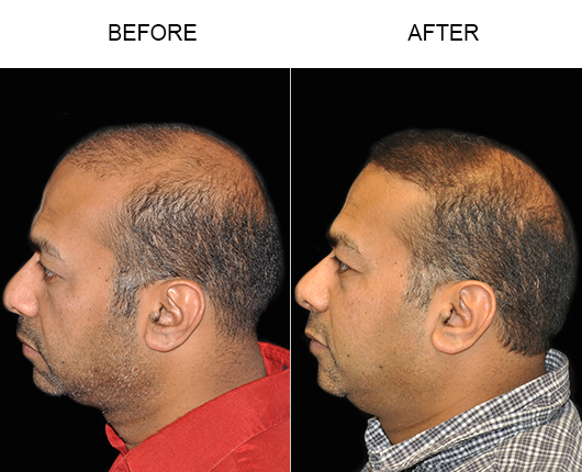 Hair Transplant Surgery Before And After Photo In Florida