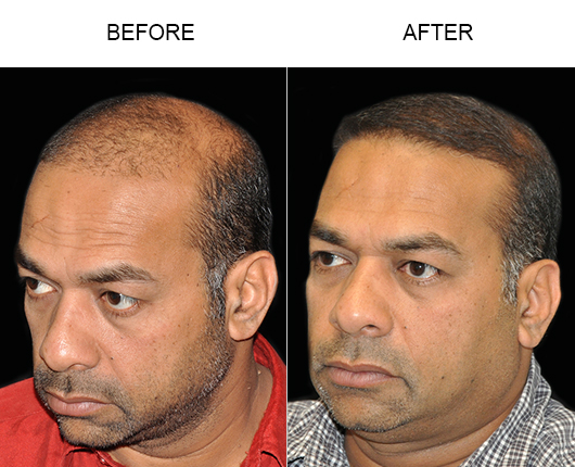 Hair Transplant Surgery Before & After Photo In Florida