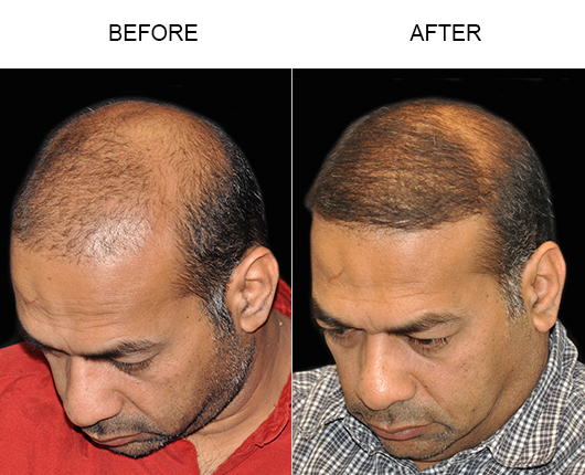 Photo Of Hair Transplant Surgery Results In Florida