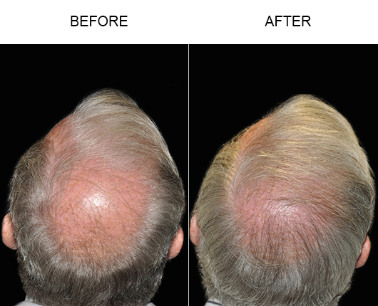 Before And After Photo Of Hair Transplant Surgery In Florida