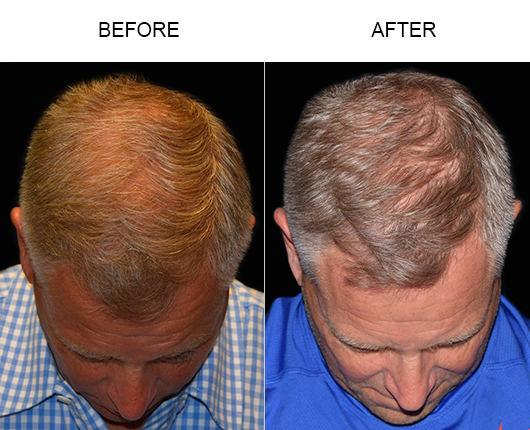 Before & After Photo Of Hair Transplant Surgery In Florida