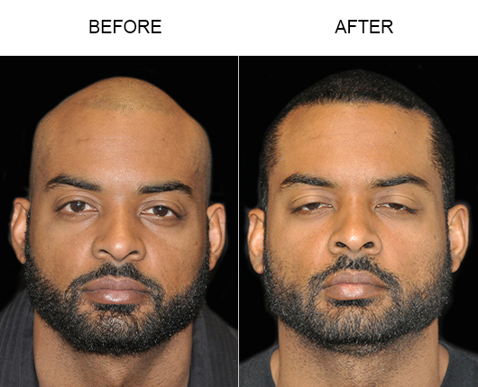 Hair Replacement Before And After