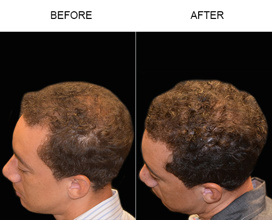 Hair Replacement Before And After In Florida