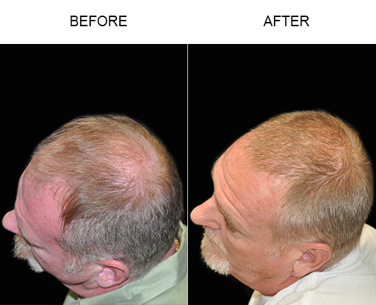 Hair Replacement Before & After In Florida