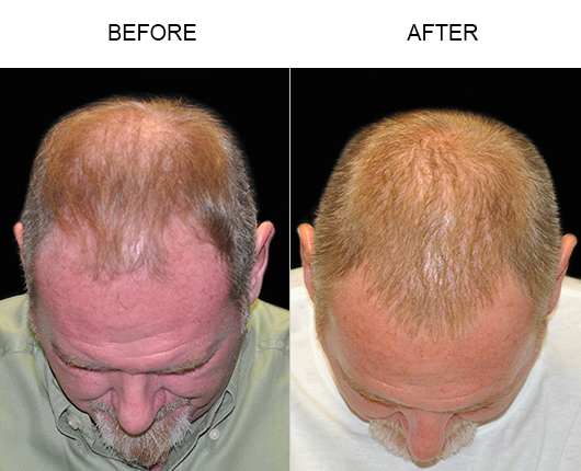 Hair Replacement Results In Florida