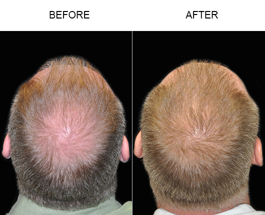 Before And After Hair Replacement In Florida