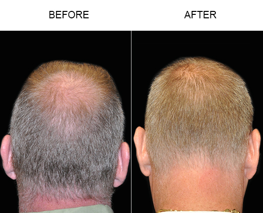 Before & After Hair Replacement In Florida