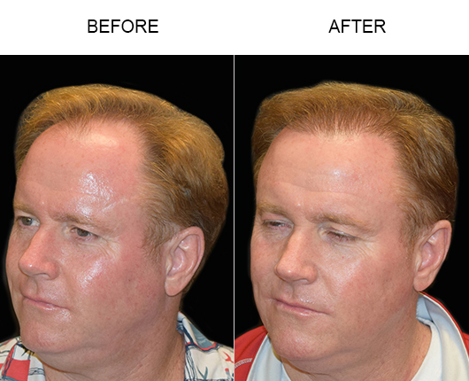 Hair Replacement Surgery Before And After