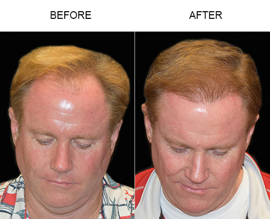 Hair Replacement Surgery Before & After