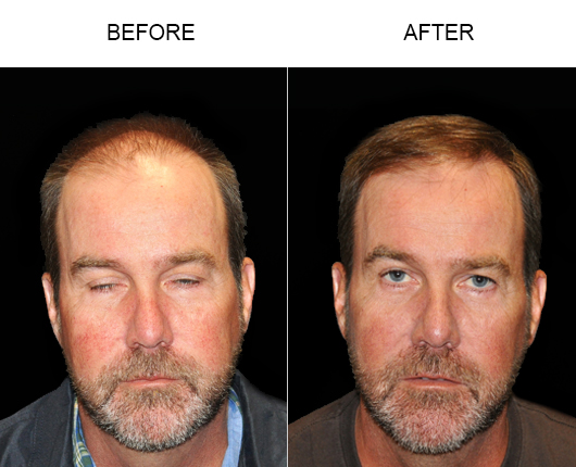 Hair Replacement Surgery Results