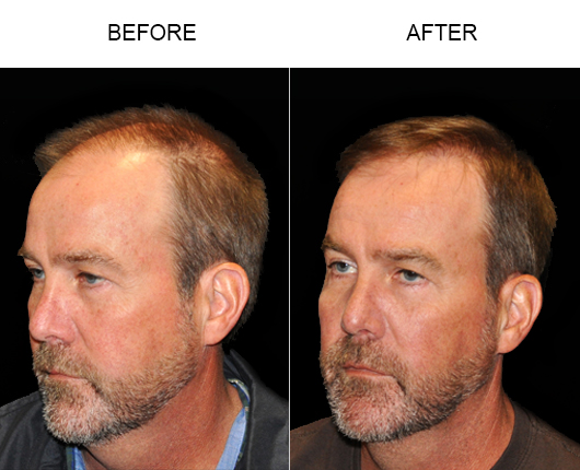 Before And After Hair Replacement Surgery