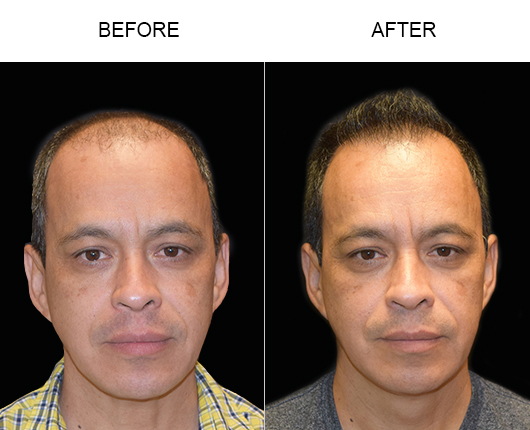 Before & After Hair Replacement Surgery