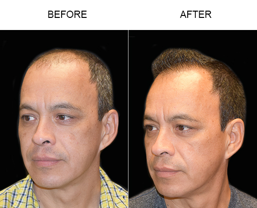 Hair Replacement Surgery Before And After In Florida