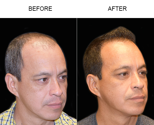 Hair Replacement Surgery Before & After In Florida