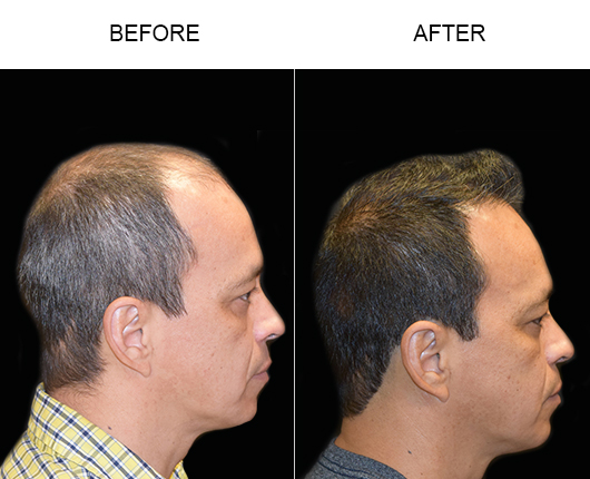 Hair Replacement Surgery Results In Florida