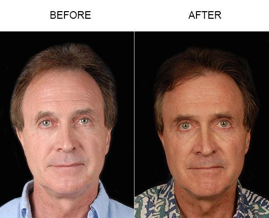 Before And After Hair Replacement Surgery In Florida