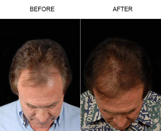 Before & After Hair Replacement Surgery In Florida
