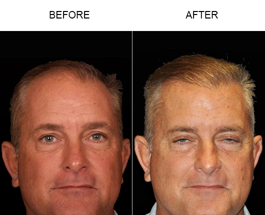 Hair Replacement Before And After Image
