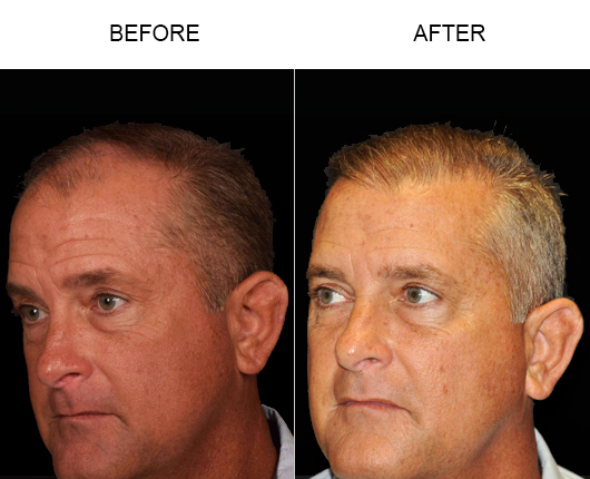 Hair Replacement Before & After Image