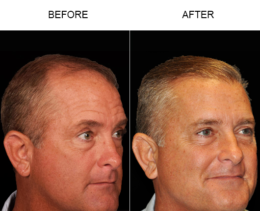 Image Of Hair Replacement Results