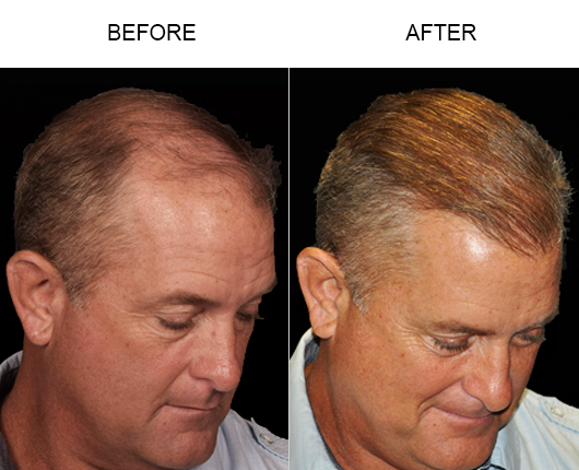 Before And After Image Of Hair Replacement