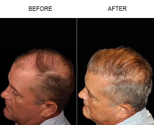 Before & After Image Of Hair Replacement