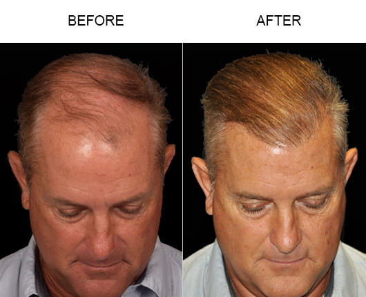 Hair Replacement Before And After Image In Florida