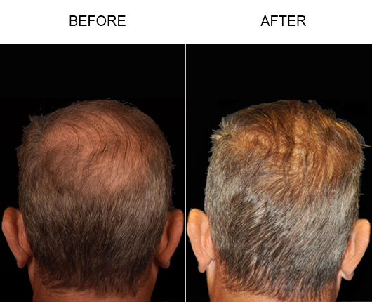 Before And After Image Of Hair Replacement In Florida