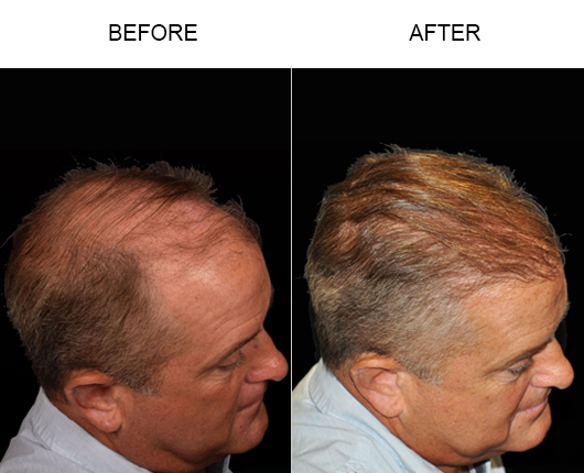 Hair Replacement Surgery Before And After Image