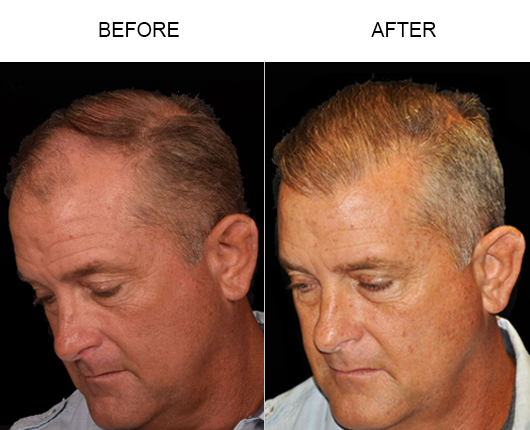 Hair Replacement Surgery Before & After Image