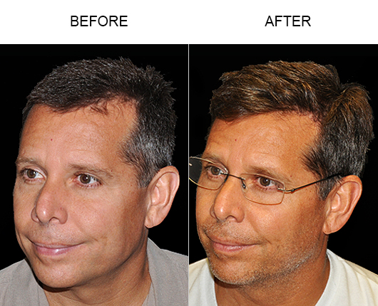 Image Of Hair Replacement Surgery Results