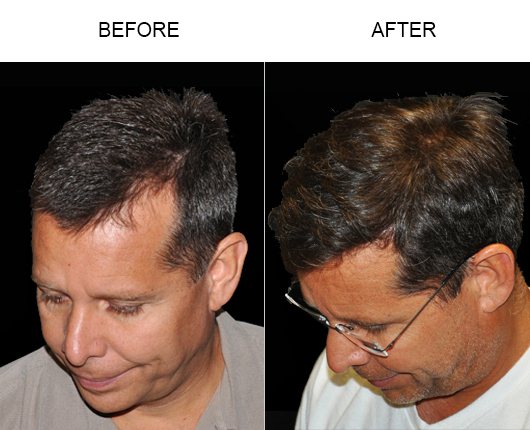 Before And After Image Of Hair Replacement Surgery