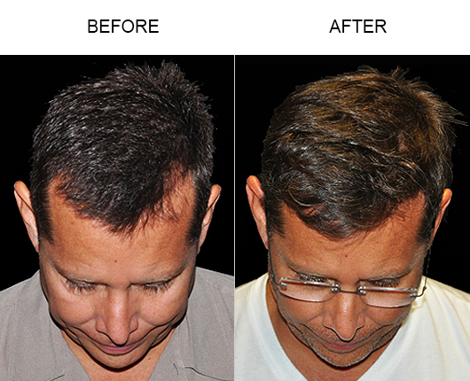 Before & After Image Of Hair Replacement Surgery