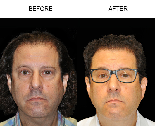 Hair Replacement Surgery Before And After Image In Florida