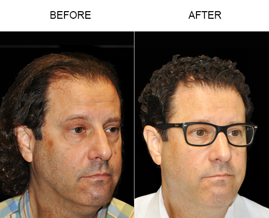 Hair Replacement Surgery Before & After Image In Florid