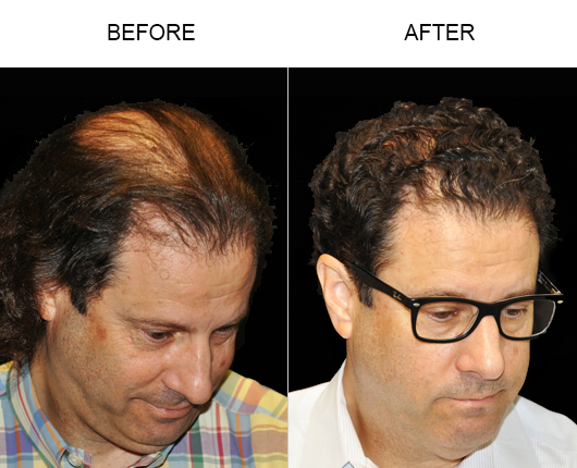 Image Of Hair Replacement Surgery Results In Florida